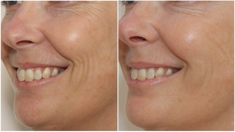 Decreasing accordion lines (smile lines) with hydrating dermal fillers