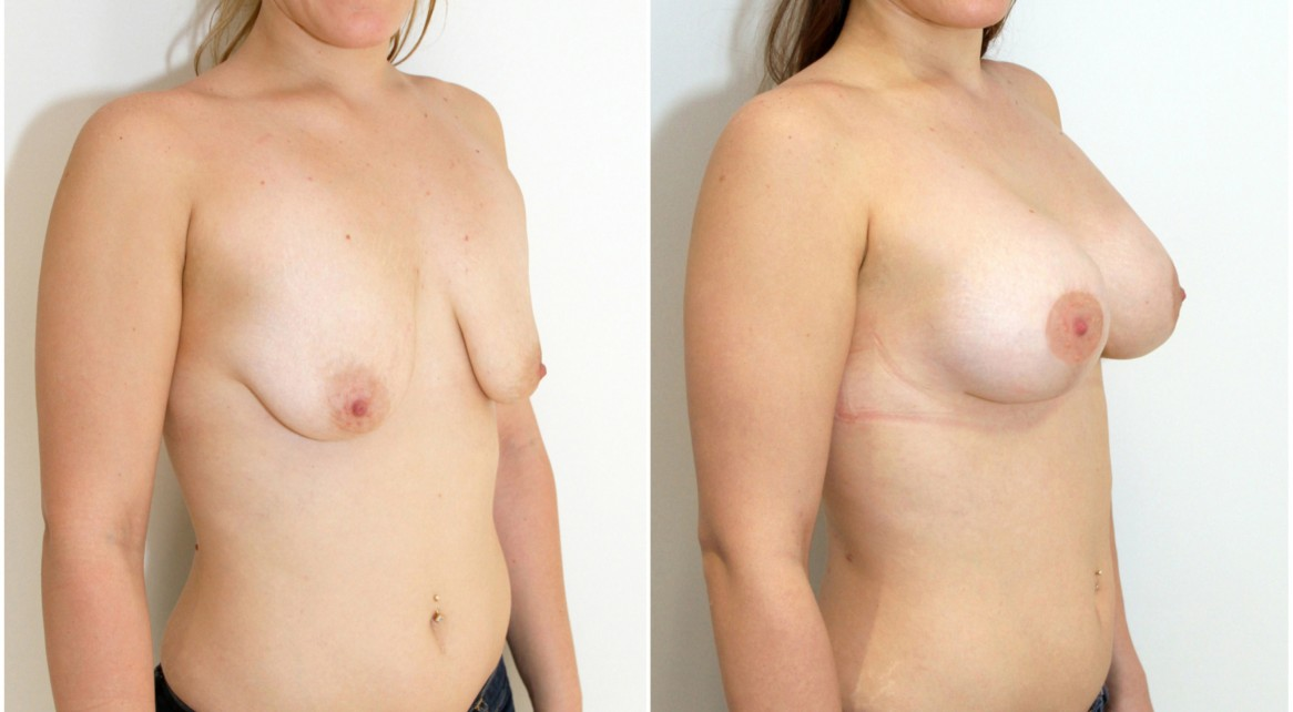 20s, breast lift and implant surgery using cohesive round style implants.