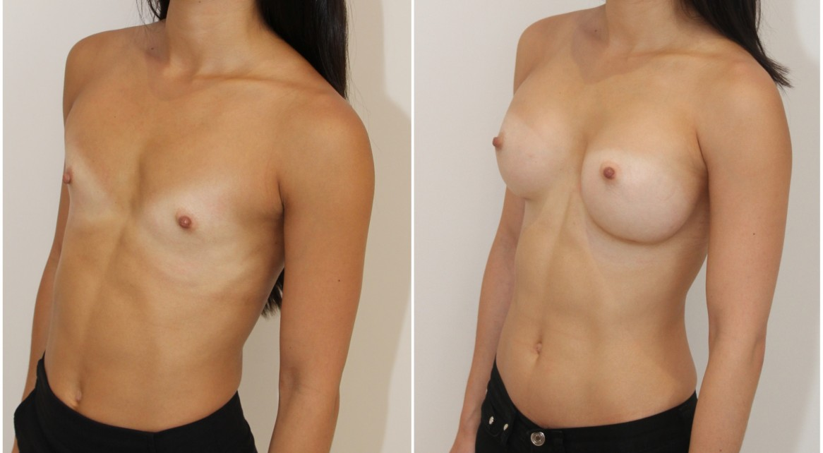 20s, dual plane 1, submuscular, 305g extra high profile, anatomical P-URE style, implants.
