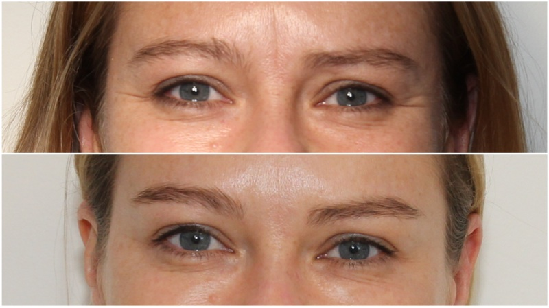 Anti-wrinkle injections used to soften frown lines and crows-feet and lift the brow