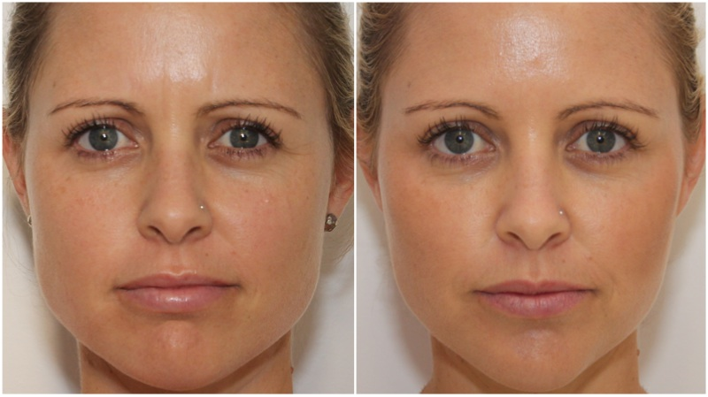 Facial slimming and jaw definition achieved by using anti-wrinkle injections