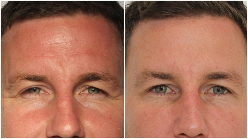 Frown and forehead lines softened using anti-wrinkle injections