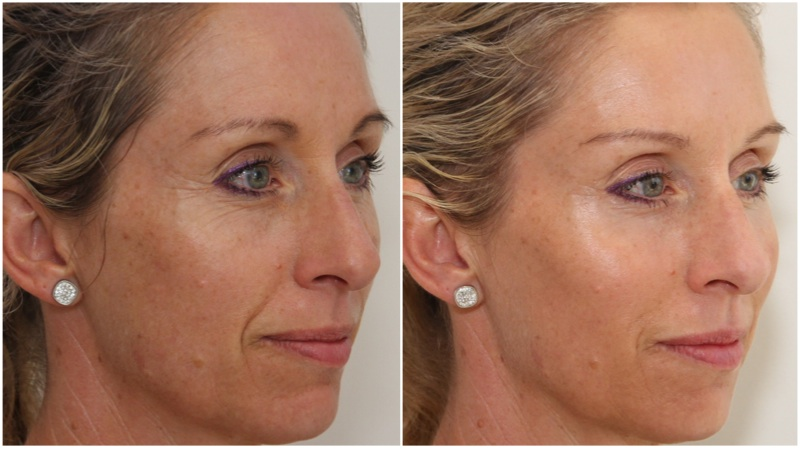 Volumising filler used to enhance cheeks, hydrating filler used to soften mouth lines and under eye hollowing. Anti-wrinkle injections have been used to soften lines on the forehead, frown and to achieve a brow lift