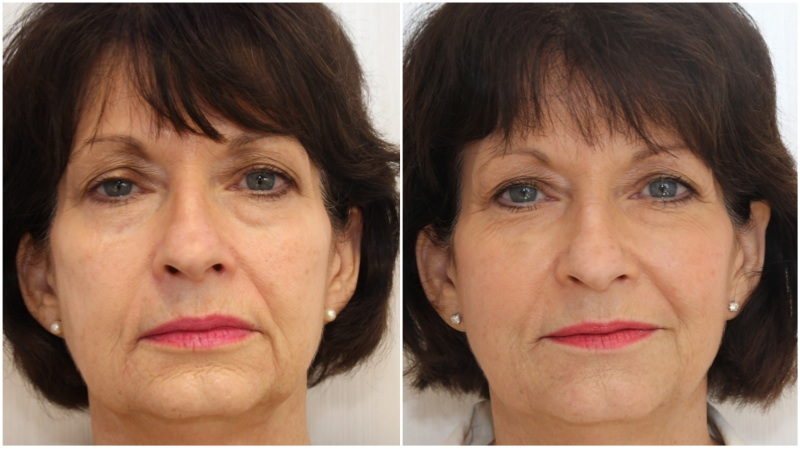 Volumising fillers used to soften ageing concerns in the mid and lower face regions