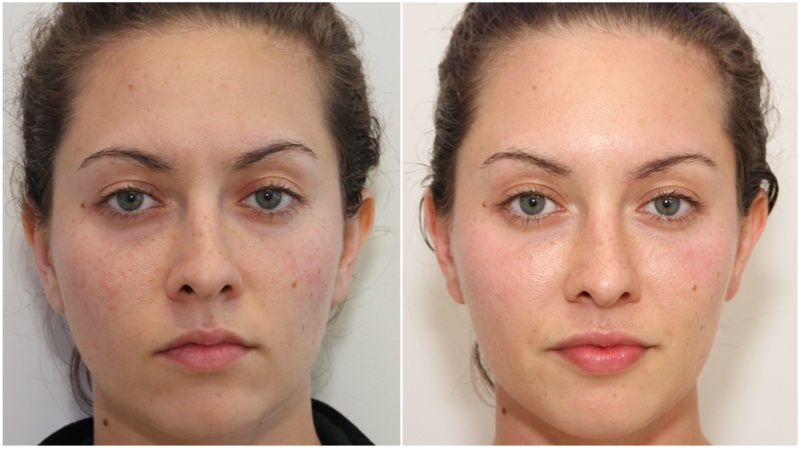 Volumising filler used to enhance cheek projection, hydrating filler used to soften under eye hollowing and enhance the lip. Anti-wrinkle injections have been used to elevate the brow, treat crows feet and frown lines