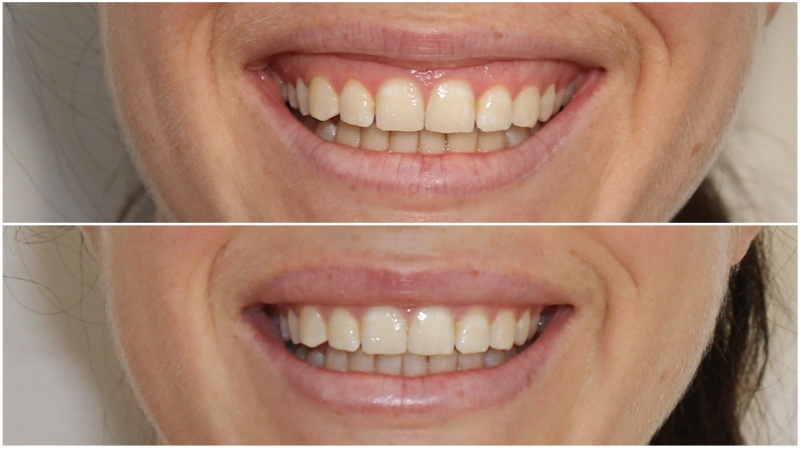 Softening a gummy smile using anti-wrinkle injections