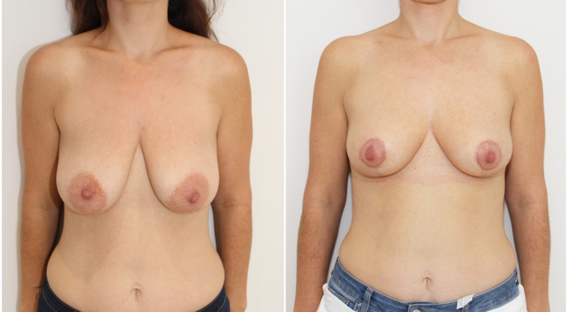 30s, breast lifting and reshaping procedure by Dr Miroshnik using no implants.