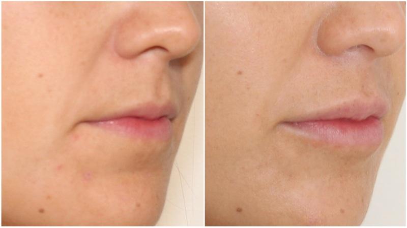 Hydrating lip filler treatment