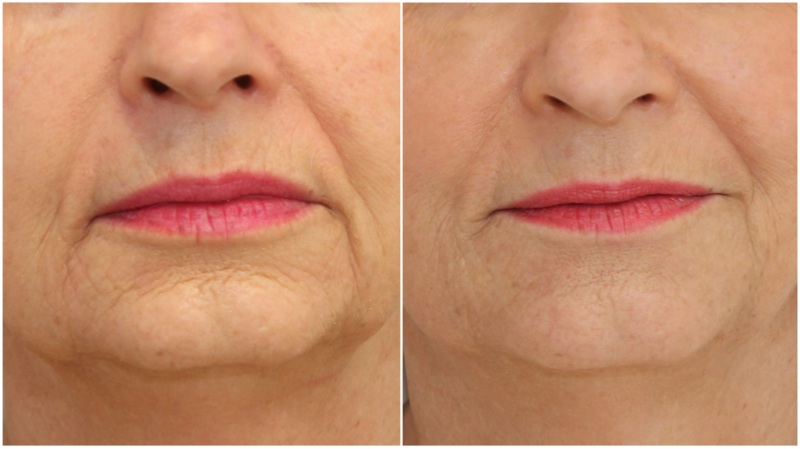 Hydrating dermal fillers used to soften marionette lines, smile lines and improve skin texture
