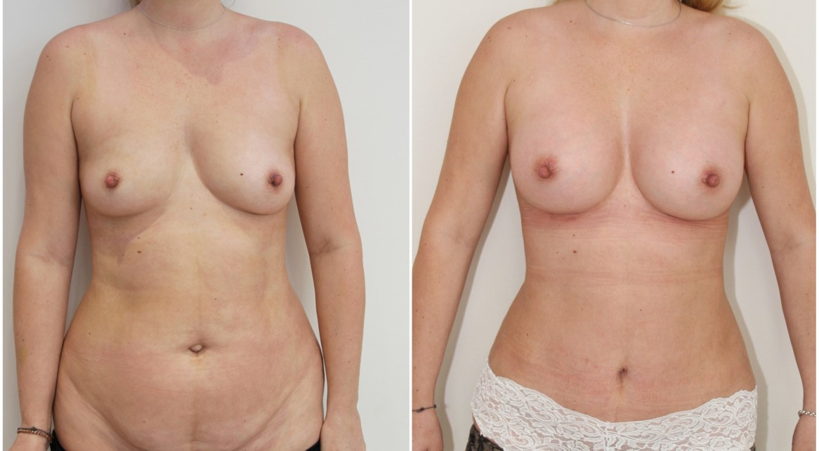 30s, mini mummy makeover with breast augmentation and mini-tummy tuck.
