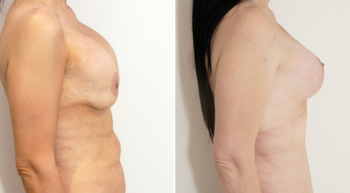 Correction of 'waterfall deformity' from previous breast augmentation surgery, with mastopexy/lift and implant exchange.