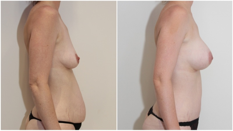 Mummy Makeover with full muscle-tightening, waist defining tummy tuck and breast enhancement.