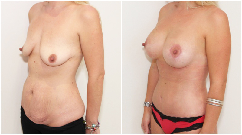 Mummy Makeover including breast lift/reshape + 325cc implants as well as muscle tightening tummy tuck to create a waistline.
