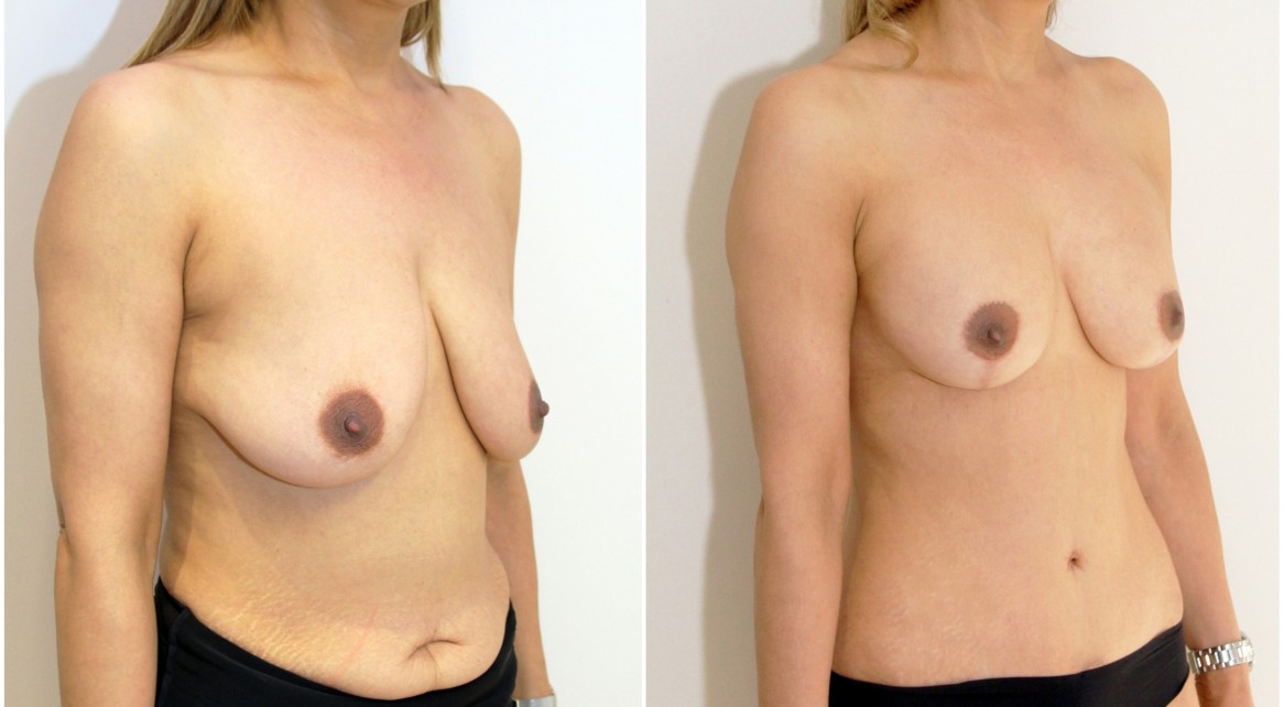 Mummy Makeover featuring a muscle tightening, waist creating full tummy tuck and breast lift.