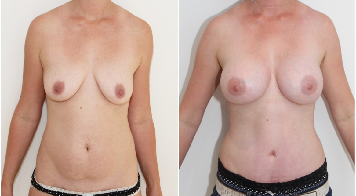 30s, mummy makeover with breast augmentation and full muscle tightening tummy tuck.