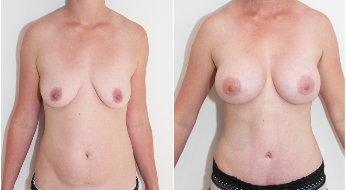 30s, mummy makeover with 375cc mod plus profile breast enhancement and full tummy tuck.
