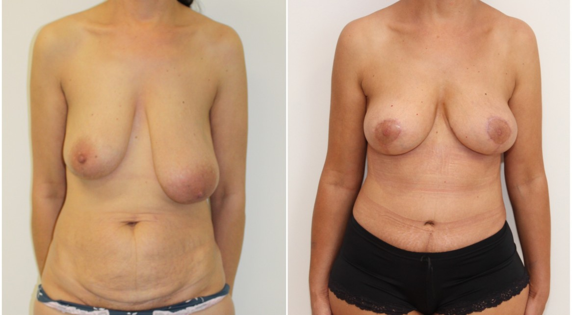 Breast lifting and reshaping procedure used to correct asymmetry without implants. Note a full tummy tuck has also been performed in this patient.