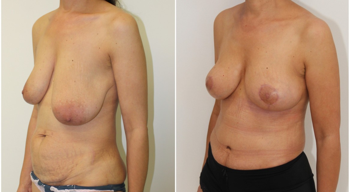 40s, mummy makeover including a breast lift/reshaping procedure without implants and full muscle tightening tummy tuck.