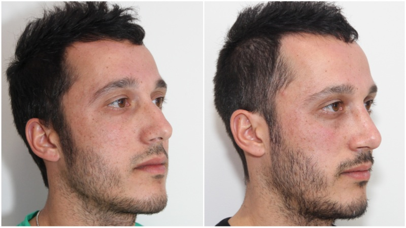 Rhinoseptoplasty performed to reduce prominent nasal dorsal hump and improve breathing by straightening the septum.