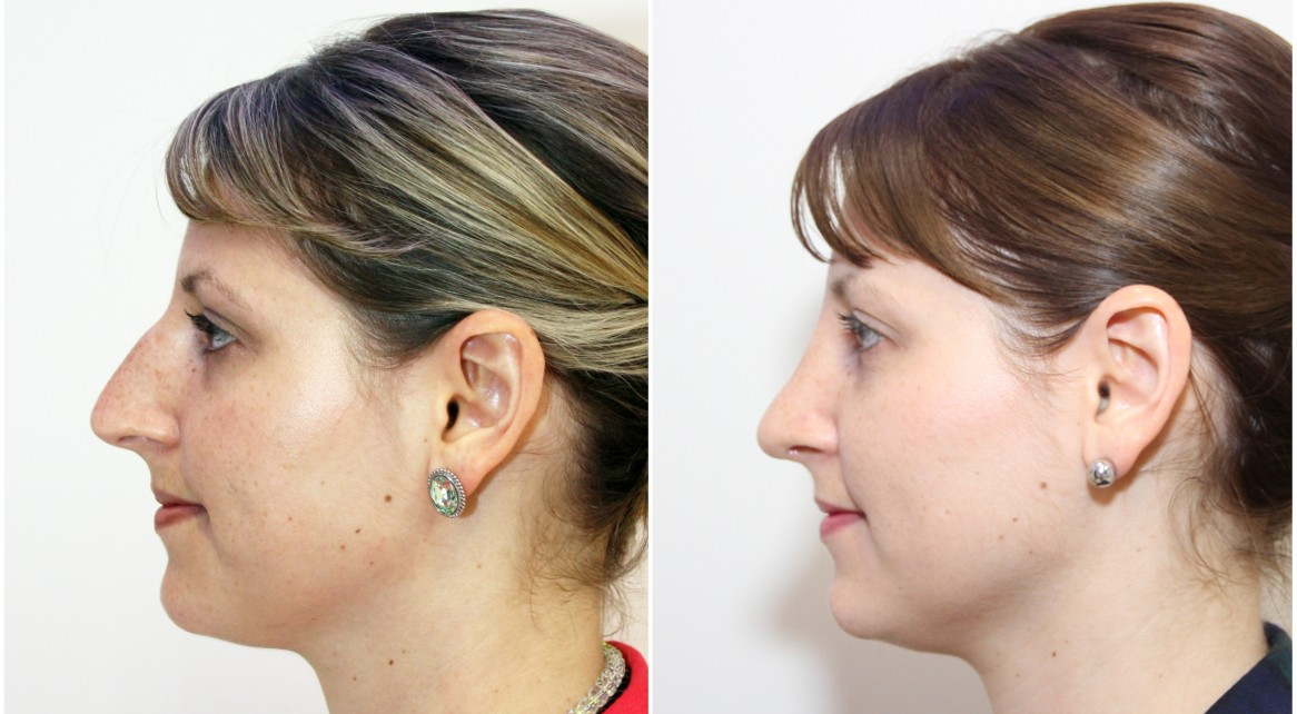 Open rhinoseptoplasty to reduce nasal dorsal hump and reshape nasal tip.