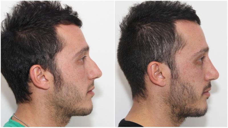 Dorsal Hump Nose - 0425