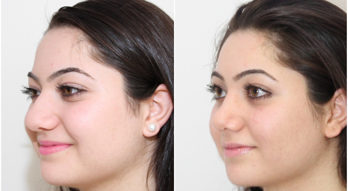 20s, rhinoseptoplasty to reduce bulky tip, straighten dorsum and create a more feminine profile.