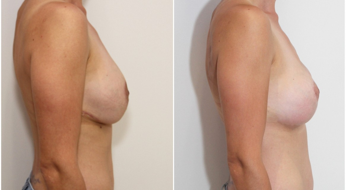Previous breast surgery overseas, redo breast lift + implants to better tighten the skin envelope and shape the breast.