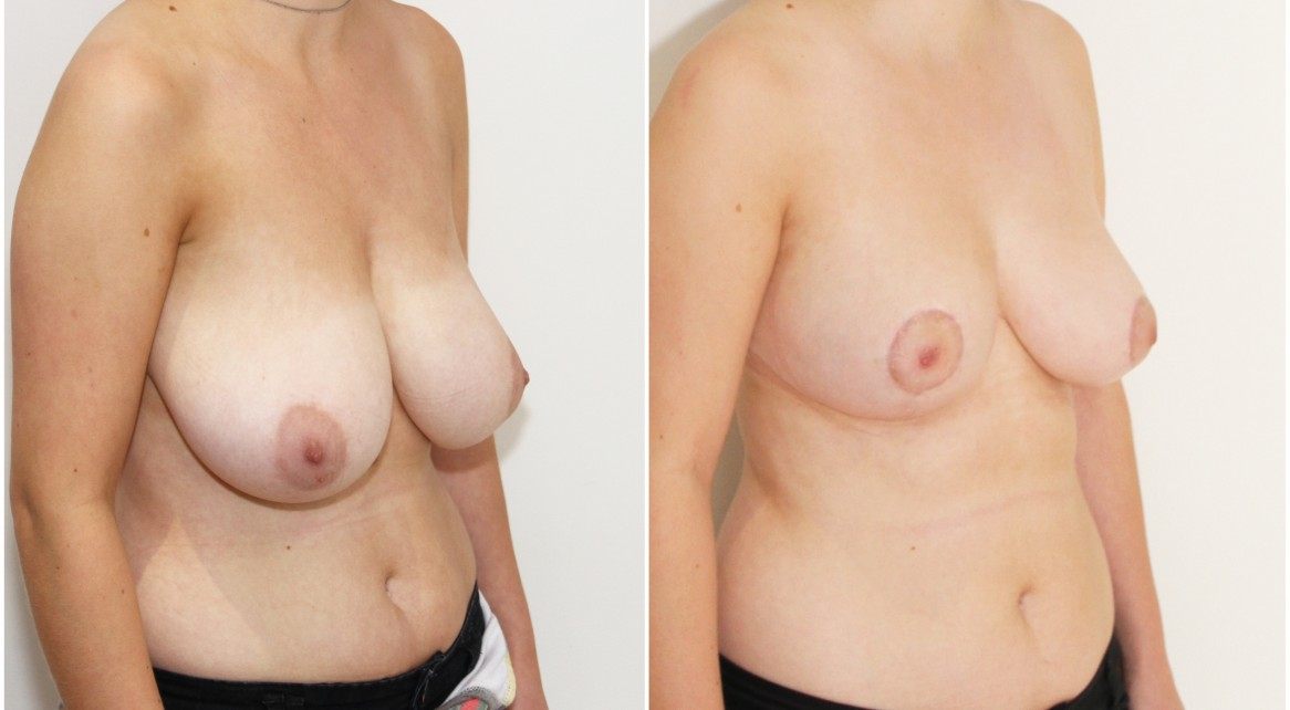 20s, breast reduction/lift/reshape with removal of 610g tissue right breast and 525g tissue left breast.