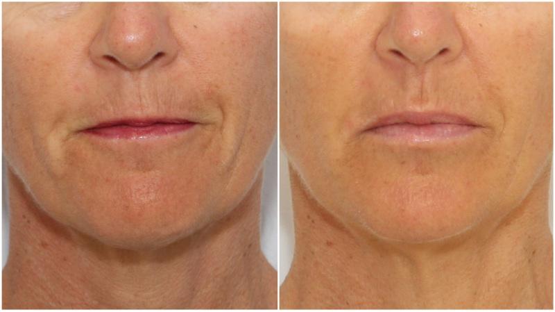 Lip Enhancement | Dr Michael Miroshnik
