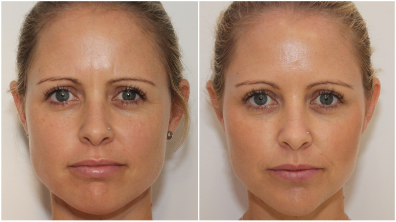 Volumising filler used to enhance the cheeks and soften the smile lines, Anti wrinkle injections used to soften the upper facial lines and slim the jawline