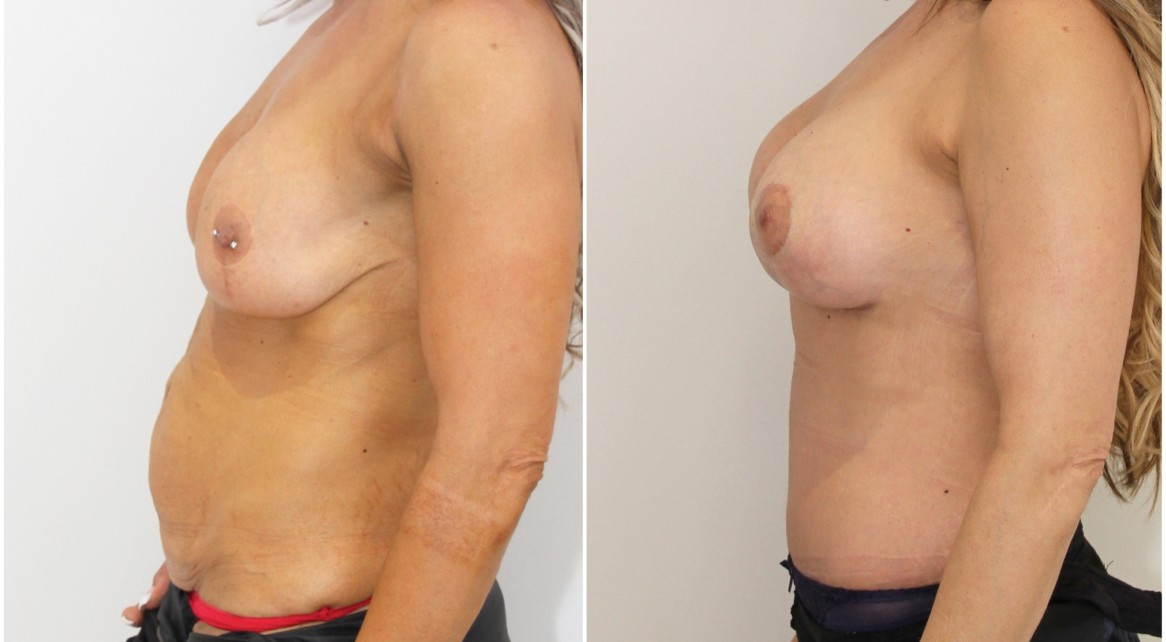 Mummy Makeover featuring removal and replacement/lift of old breast implants and muscle tightening tummy tuck.