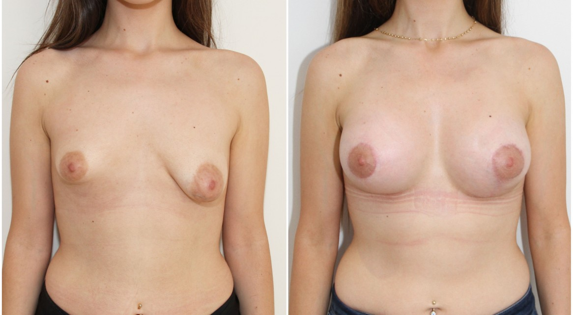 20s, bilateral tuberous breasts, periareolar mastopexy and lift with implants to reshape.