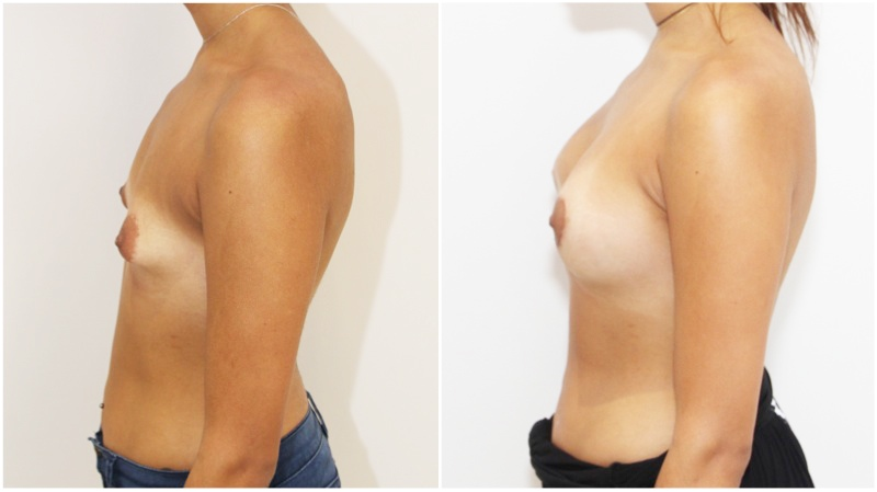 20s, tuberous breast shape corrected with subfascially placed 315g high profile anatomics.