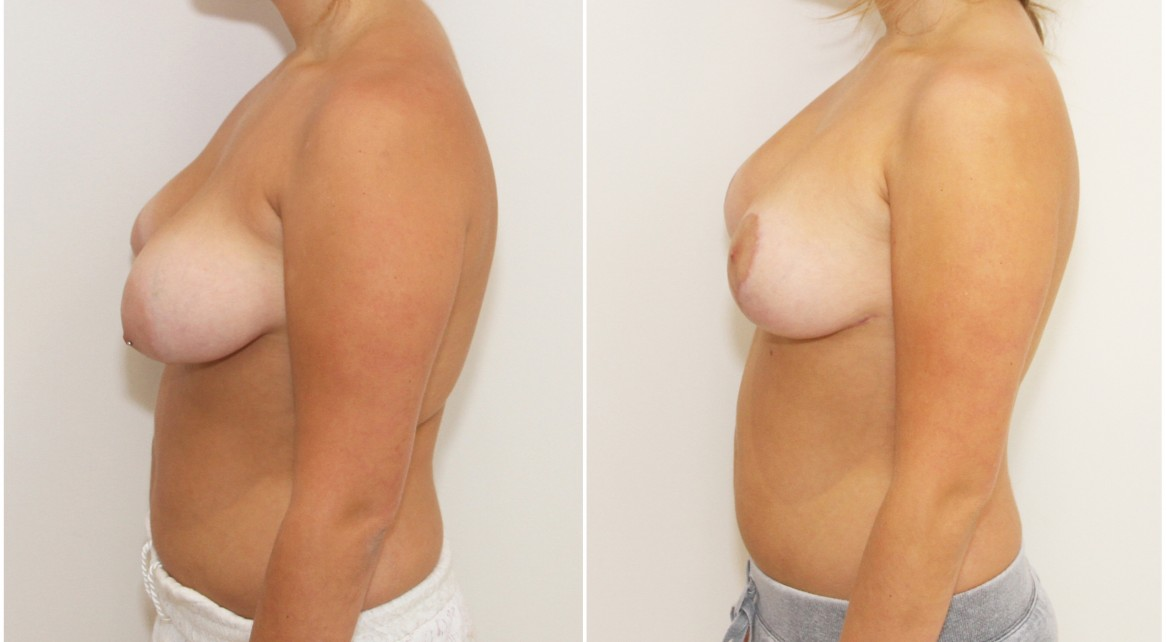 20s, breast lift and implants with 280cc moderate profile anatomics.