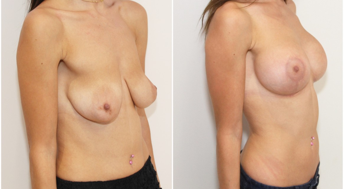 20s, tuberous breasts combined with ptosis (droop), correction with breast lift/reshape and 325g implants.