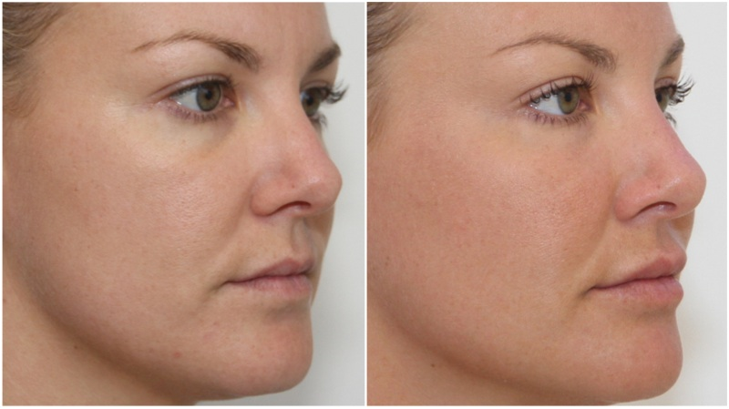 wrinkle filler injections cost