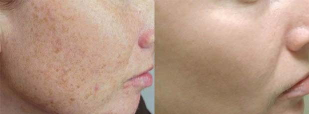Optimised light treatments have been used over the full face to decrease the signs of sun damage and to even the skin tone, the patient received 3 treatments in total