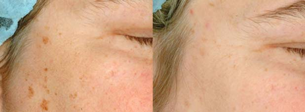 Optimised light has been used to decrease the signs of age spots, the patient received only 1 treatment