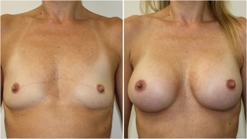 Natural style breast augmentation by Dr Miroshnik using 255g anatomical implants, dual plane placement