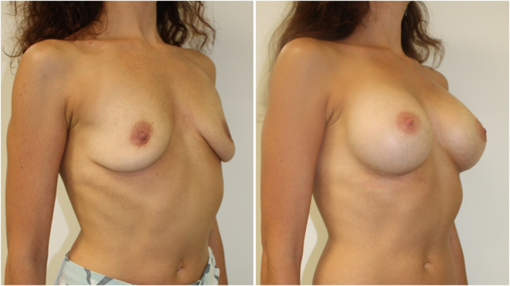 Breast Re-inflation by Dr Miroshnik, using 410g anatomical, cohesive gel implants, dual-plane positioned