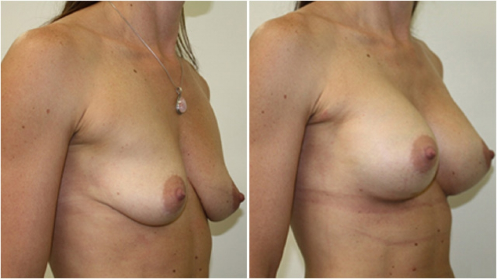 Breast augmentation by Dr Miroshnik to correct significant breast droop (without a lift) using 310g anatomical implants