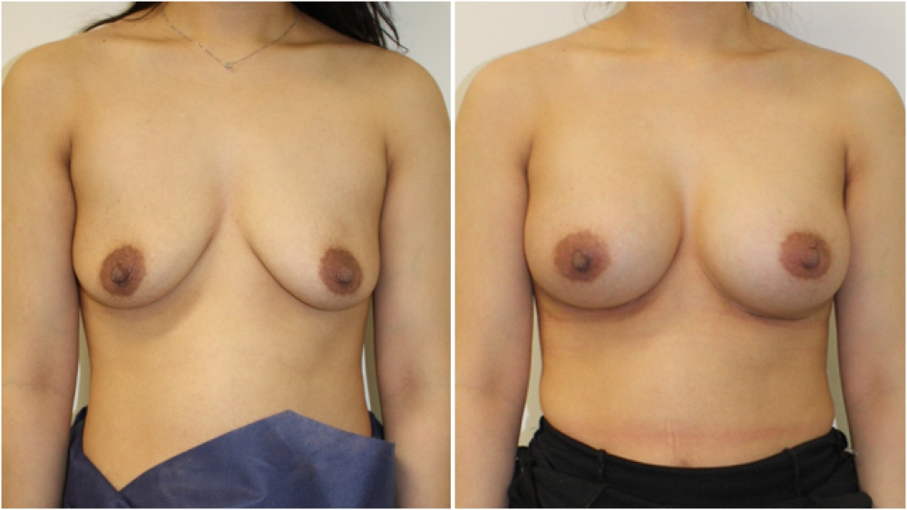 Breast augmentation by Dr Miroshnik to correct droop, using 325g anatomical implants