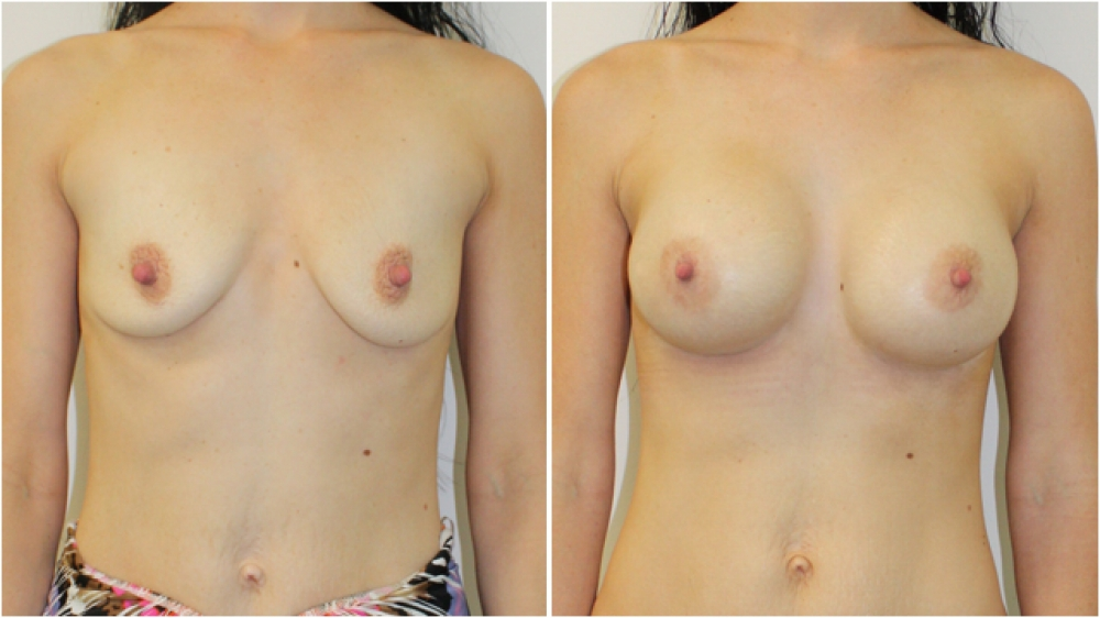 Breast augmentation to correct drop using 360g, extra high profile implants, dual-plane positioned