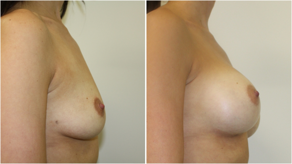 Breast augmentation by Dr Miroshnik to correct droop using dual-plane positioned 295g, high profile implants