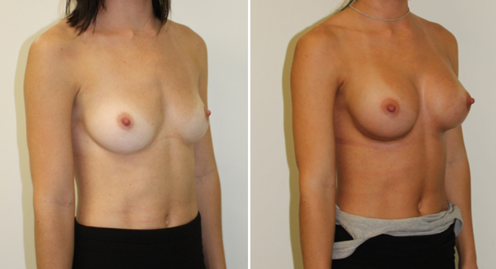 Natural style breast augmentation by Dr Miroshnik using 315g, anatomic, dual-plane placed implants.
