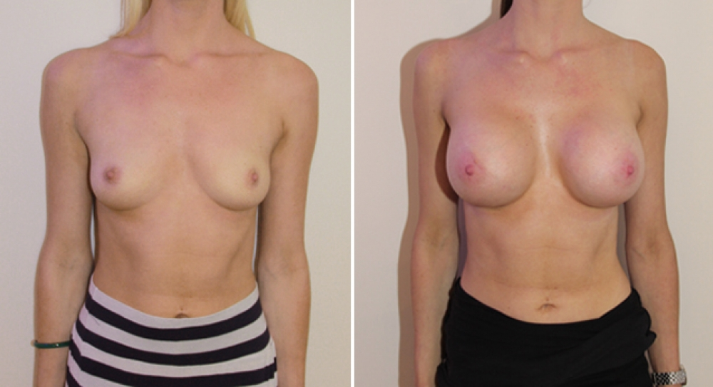 Enhanced look created with 445g, submuscular round style implants.
