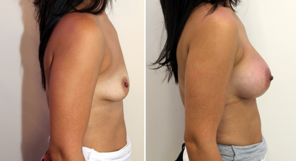 Breast Re-inflation by Dr Miroshnik using 390g anatomic implants, subfascial placement