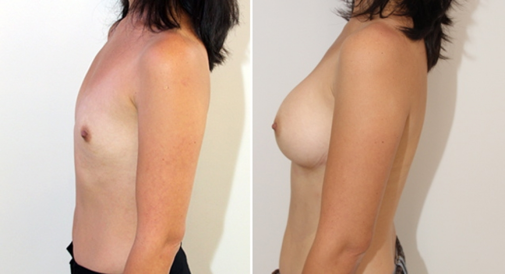 Natural style breast augmentation by Dr Miroshnik using 350g anatomical implants, dual plane placement