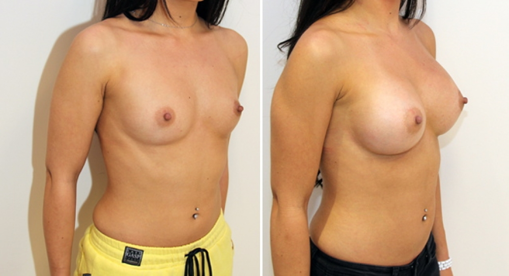 Enhanced style look created here with high profile, submuscular round implants 345g.