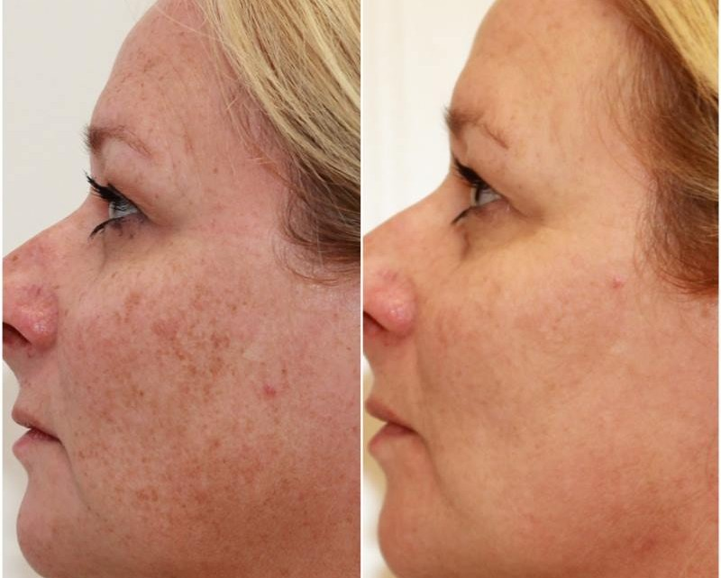 Optimised light treatments have been used over the full face to decrease the signs of sun damage and ageing pigmentation, the patient received 3 treatments in total